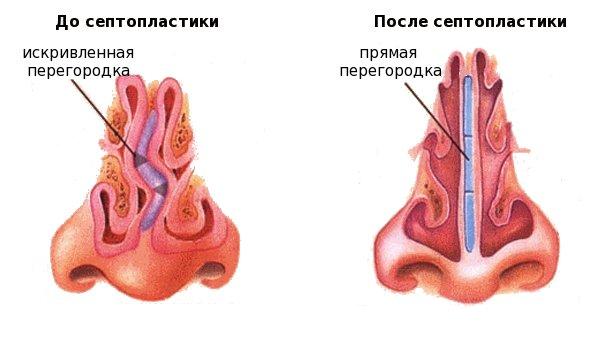 Лечение храпа лазером в барнауле